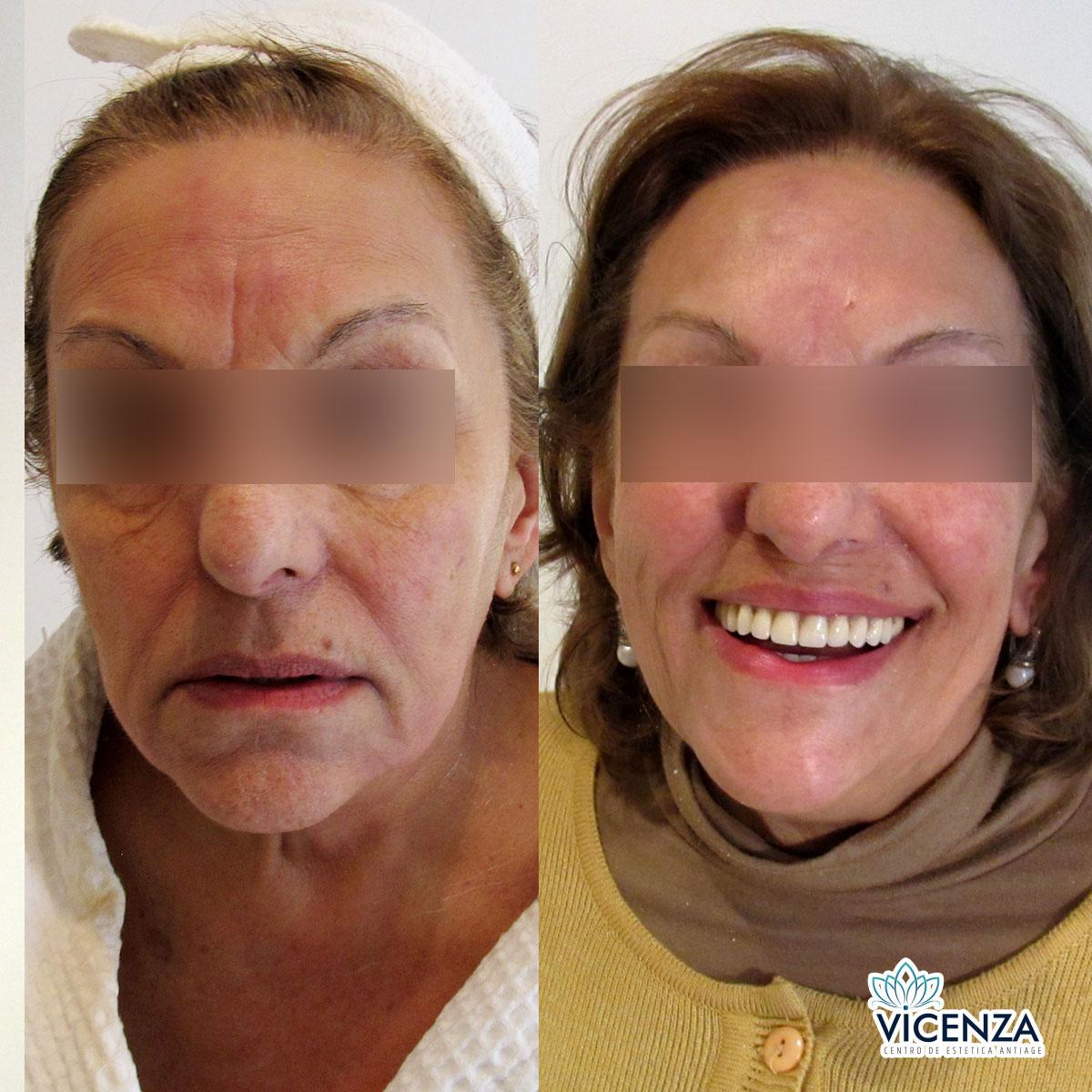 Antes y después plasma rico en el rostro