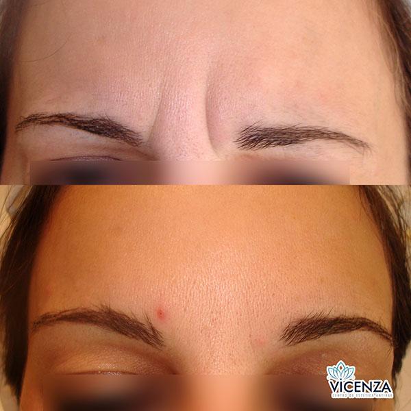 Botox: Antes y Después