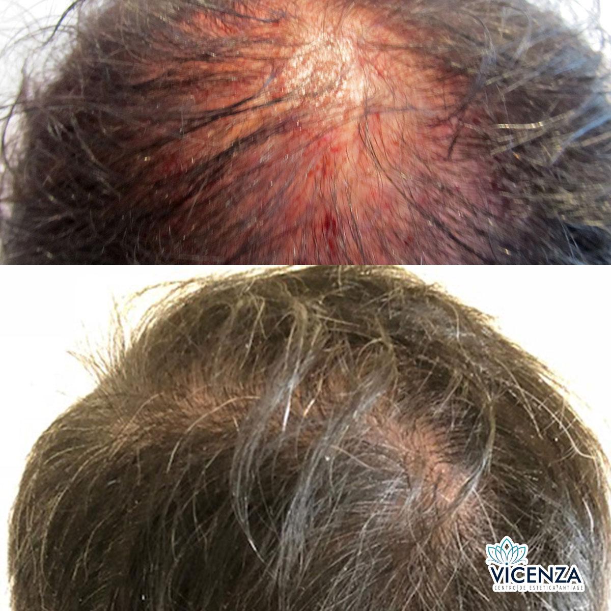 Antes y después plasma rico capilar