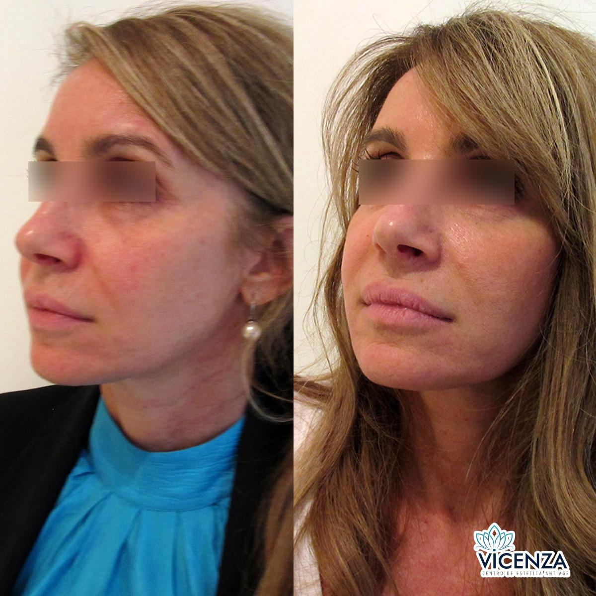 Antes y después plasma rico en rostro