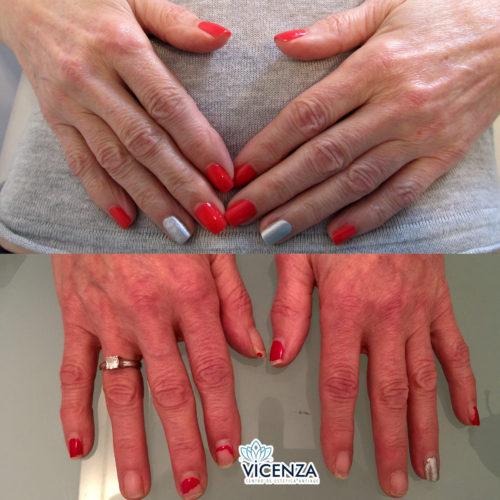 Antes y después plasma rico en manos